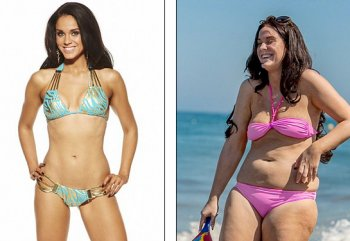 Before and After Vicky Pattison